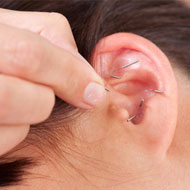 Auricular Acupuncture For Pain Relief